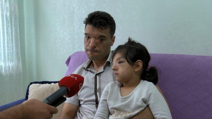 Dünyada Sadece 4 Ailede Görülüyor. Özel Güvenlik Baba Çocuğu İçin Yardım Bekliyor