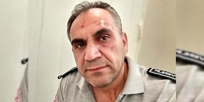 Hastane Güvenlik Görevlisi'ne Yine Şiddet